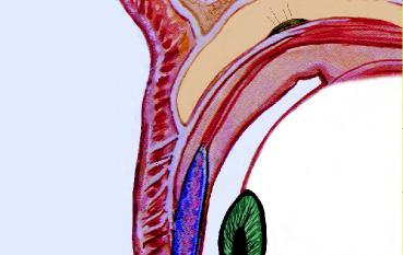 oculoplastica1