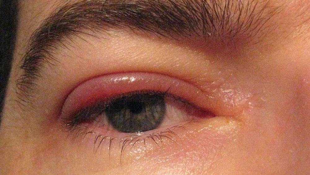 7159c8f68de7 Occhio ed Annessi oculari
