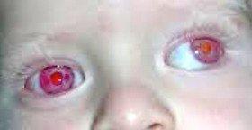 Albinismo oculare