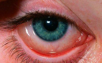 fd19388068 Occhi Rossi, Lacrimazione e Forte Prurito: ecco le allergie! • Occhio.it